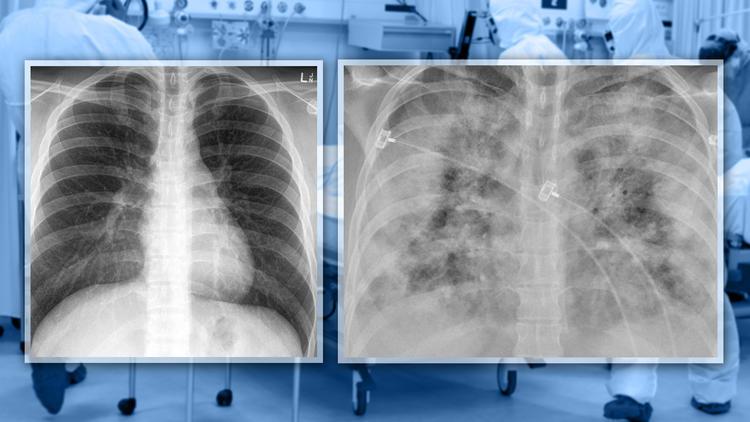 Geimpft vs. Ungeimpft - So unterscheiden sich Covid-Lungen