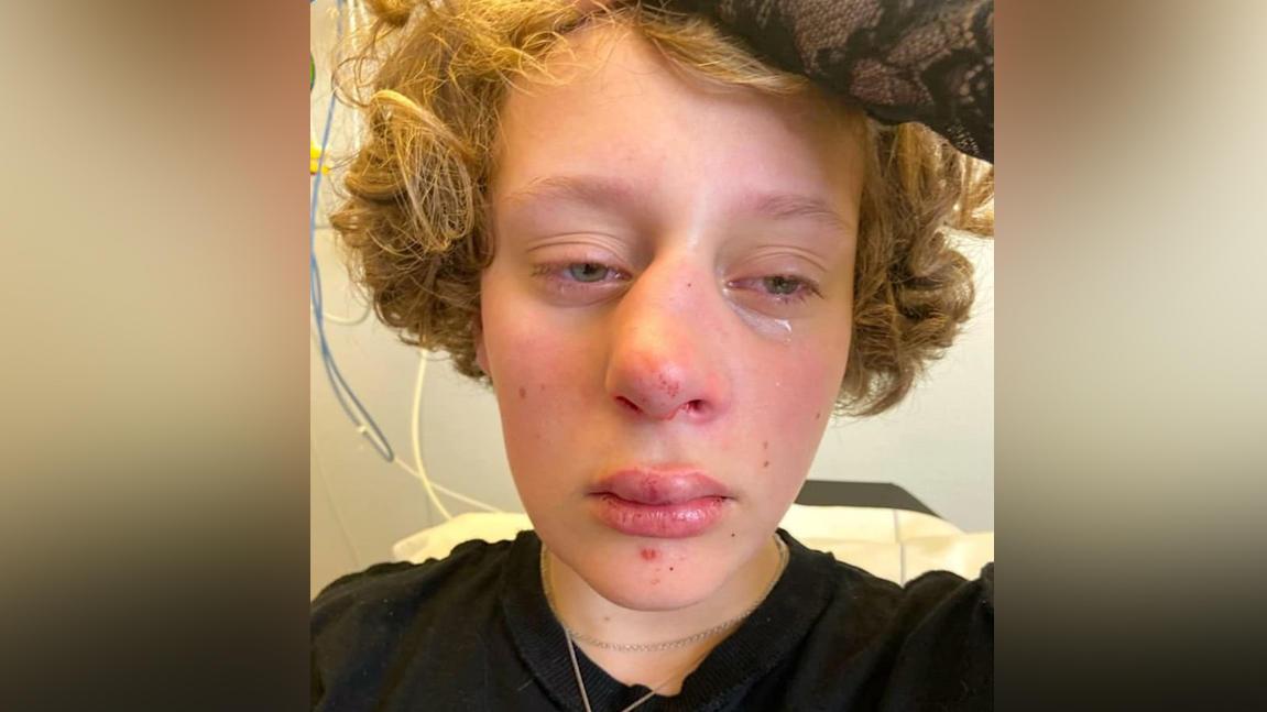 LGBTQ-Hassverbrechen? 14-Jährige in Amsterdam übelst verprügelt.