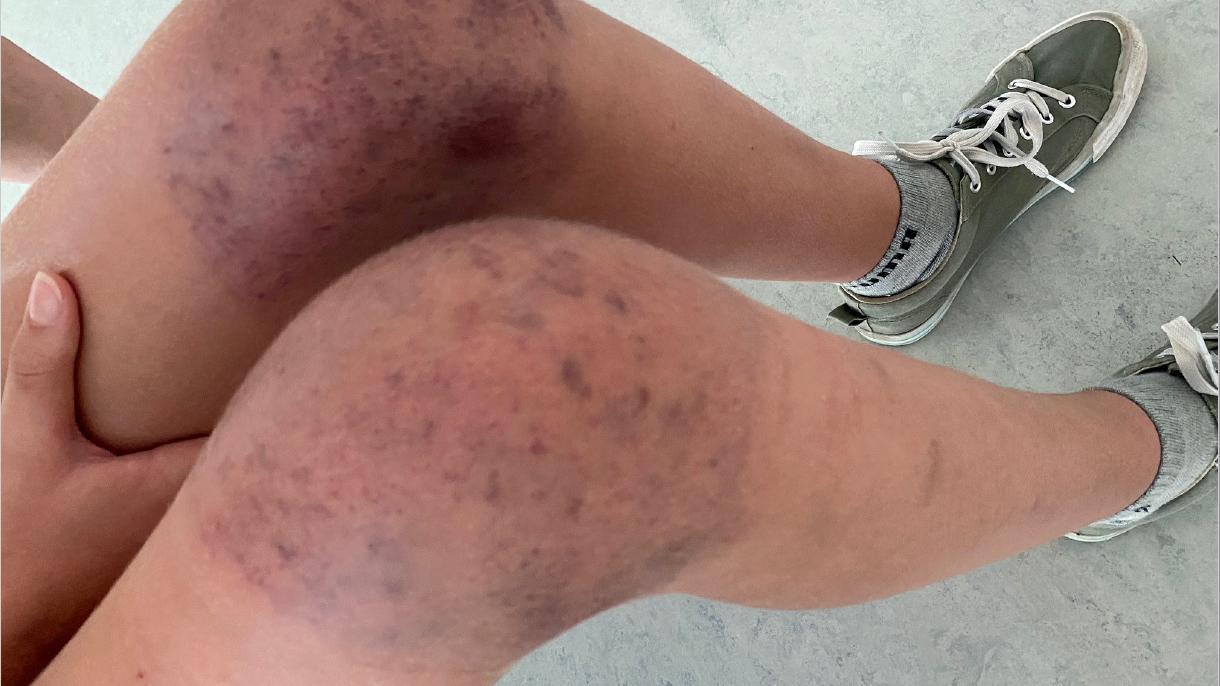 Die Knie der 13-jährigen Schülerin sind von blauen Flecken übersäht.