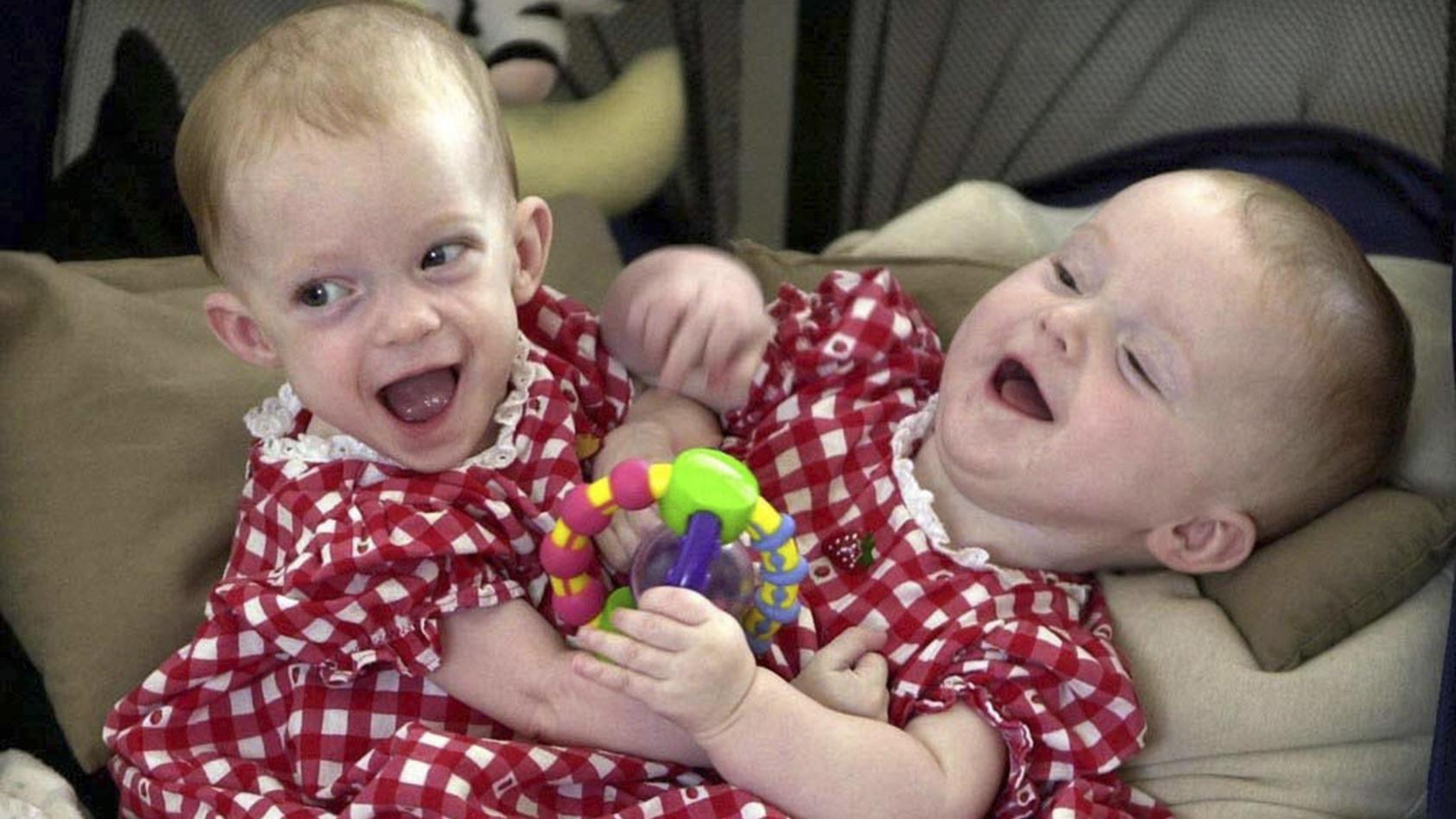 Siamesische Zwillinge Charity und Kathleen im August 2000.
