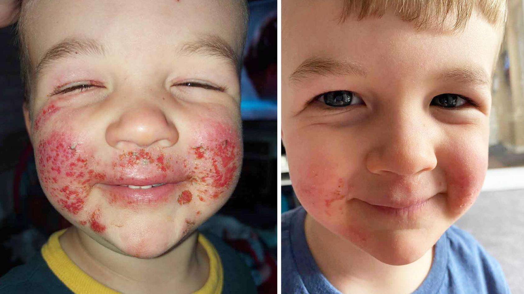 Arlyn aus Schottland bekam im Alter von 15 Monaten schlimme Ekzeme im Gesicht.