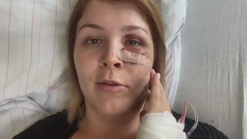 Nach der Operation hat Sarah mehrere Platten im Gesicht, um die gebrochenen Knochen zusammenzuhalten.