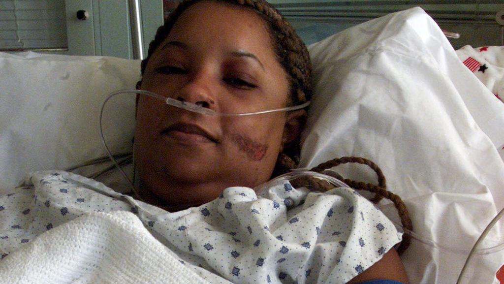 Genelle Guzman, 32, of Brooklyn, N.Y., recuperates from Tuesday's terrorist attack on the World Trade Center, in Bellevue Hospital Center in New York, Friday, Sept. 14, 2001. Guzman was on the 64th floor when the attack occurred. She made it to the 1