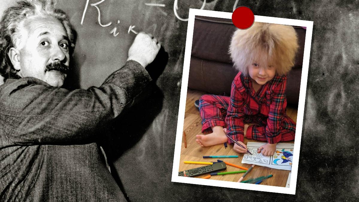 Albert Einstein litt an der gleichen Krankheit wie die kleine Florence.