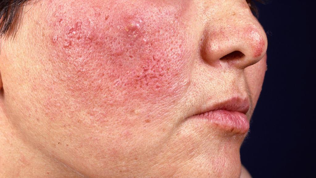 Eine Rosazea-Patientin mit deutlich sichtbaren Hautknötchen
