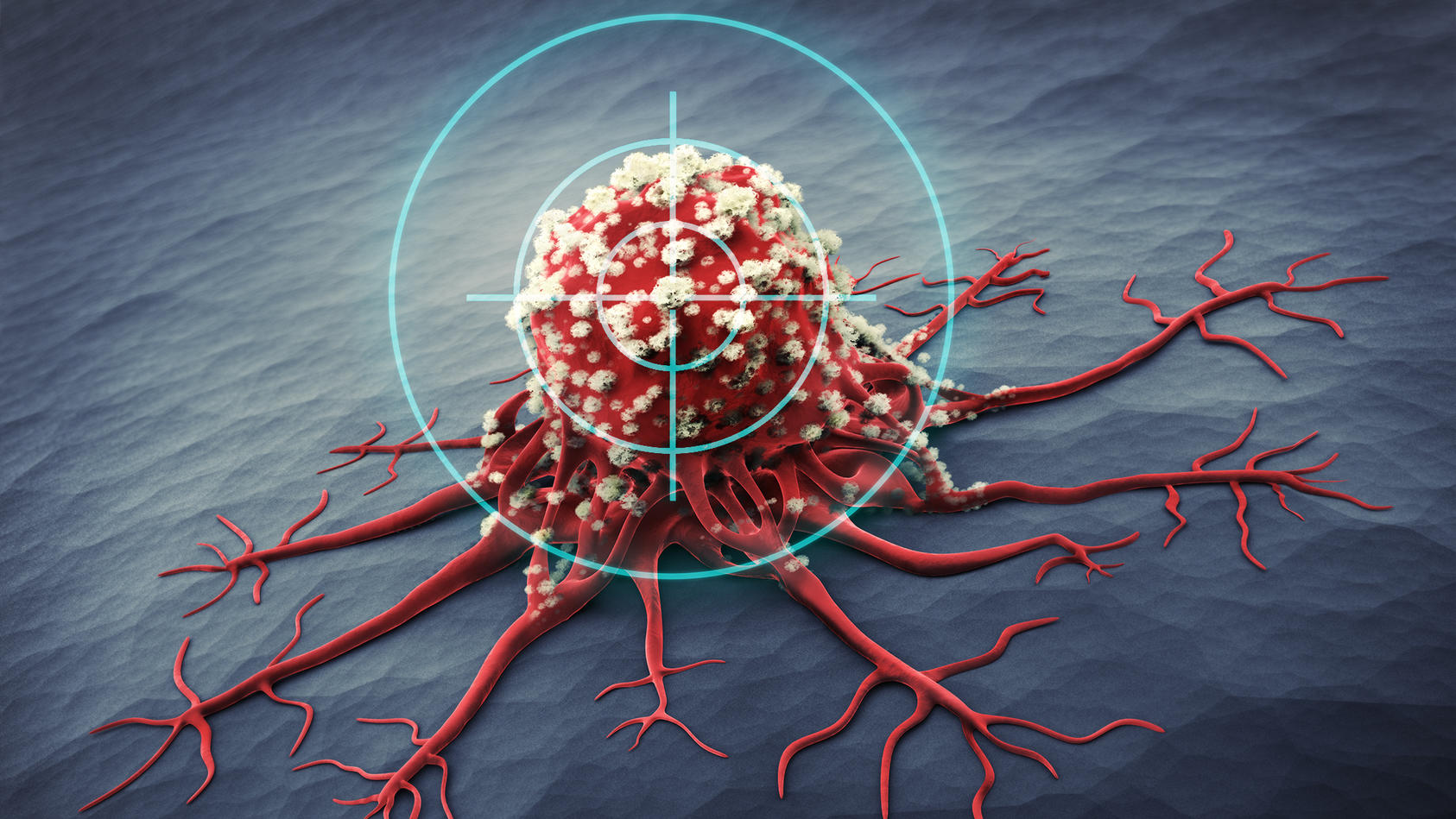 """Krebszellen können in einen """"Schlummerzustand"""" geraten. Kölner Forscher wollen sich das zunutze machen. (Symbolbild)"""