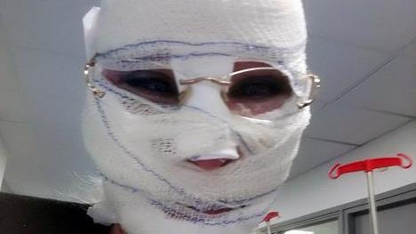 Annie Vandenbussche musste drei Wochen lang eine Kopfbandage tragen.