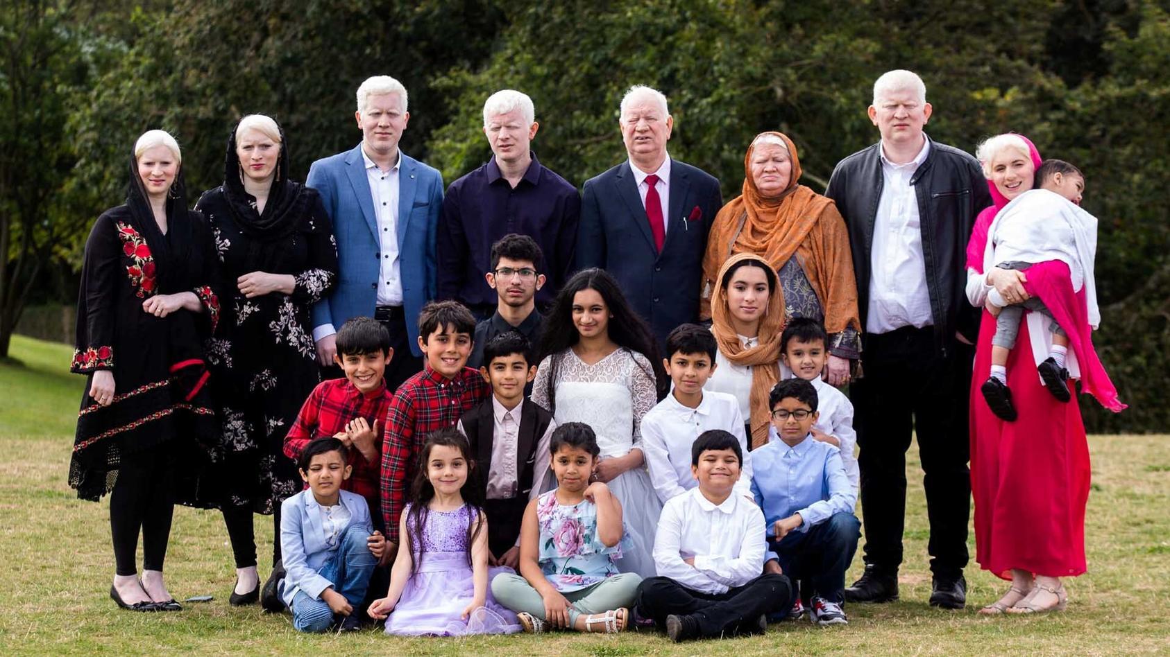 die-parvez-sind-die-wohl-grote-albino-familie-weltweit