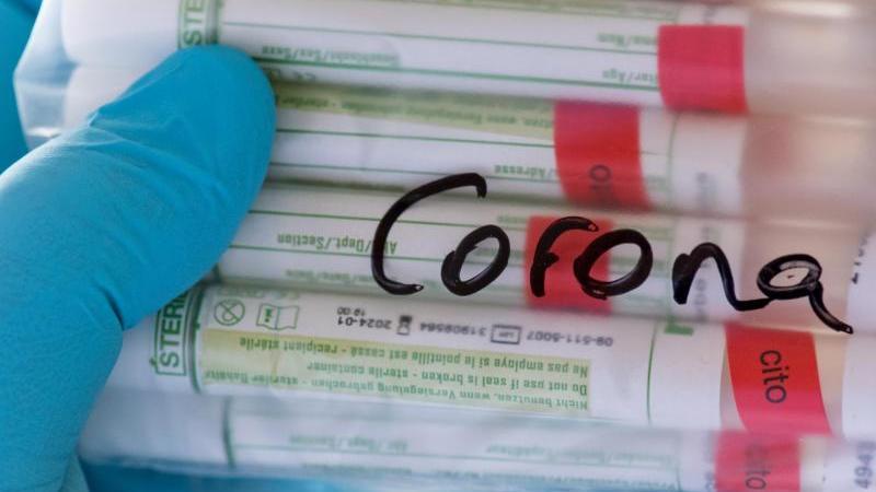 proben-fur-corona-tests-werden-fur-die-weitere-untersuchung-vorbereitet-foto-hendrik-schmidtdpa-zentralbildsymbolbild