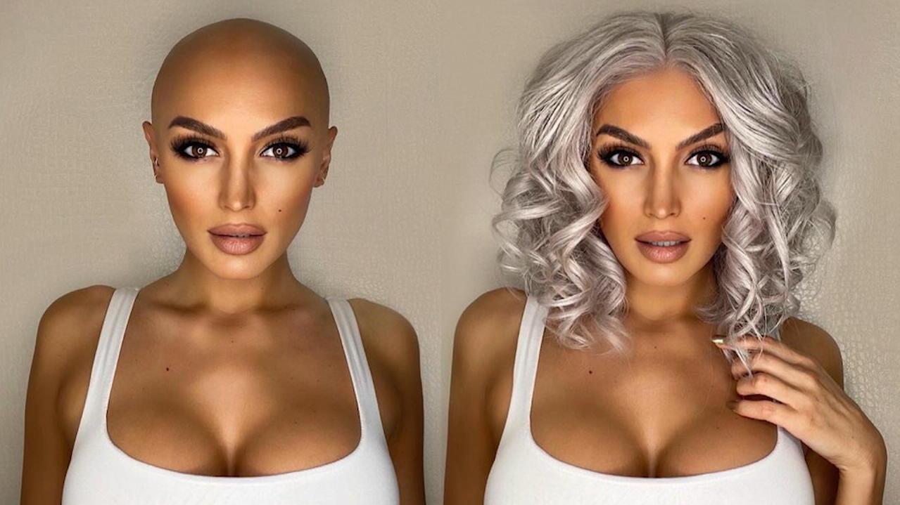 Autoimmunkrankheit Alopezie - Britin fallen plötzlich alle Haare aus