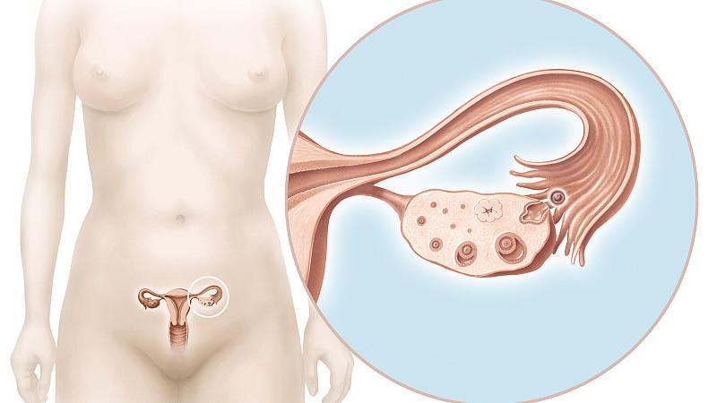 Frauen-Unterkörper und Eileiter