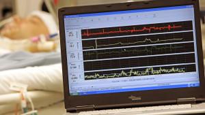 Künstliches Koma: Die Vollnarkose, die den Patienten entlastet