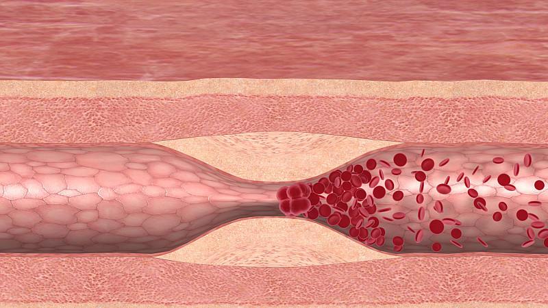 Blutgerinnsel können die Folge einer Corona-Infektion sein.