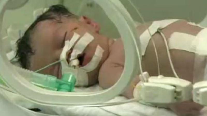 Ärzte kämpfen um das Leben der kleinen Shaima.