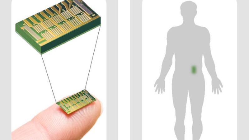 Verhütungsmittel der Zukunft? US-Forscher haben einen Mikrochip entwickelt, der Frauen unter die Haut gepflanzt wird und regelmäßig Hormone abgibt, die den Eisprung verhindern.