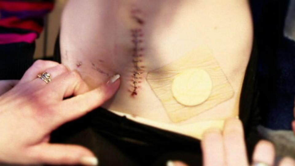 Ärztepfusch kostet fast ihr Leben