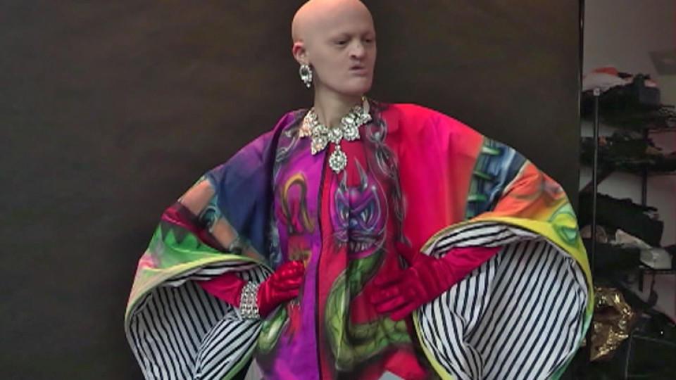 Melanie Gaydos ist Model trotz Gendefekt