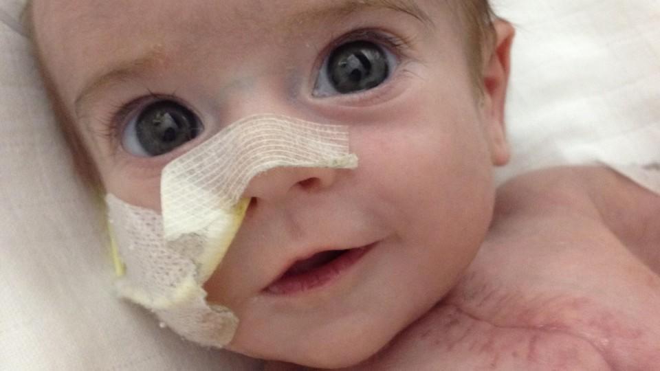 Baby Jack ist ein absoluter Kämpfer. Er wurde mit dem hypoplastischen Linksherz-Syndrom geboren.