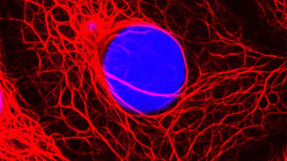 Krebs-Sensation: Forscher wandeln bösartige Zellen in gutartige um