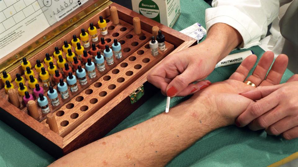 Jeder fünfte Deutsche hat Heuschnupfen, Asthma oder eine Hauterkrankung, das betrifft Erwachsene wie Kinder. In einer Arztpraxis wird der sogenannte Prick-Test durchgeführt, eine international bewährte, einfache und schnell durchführbare Methode mit