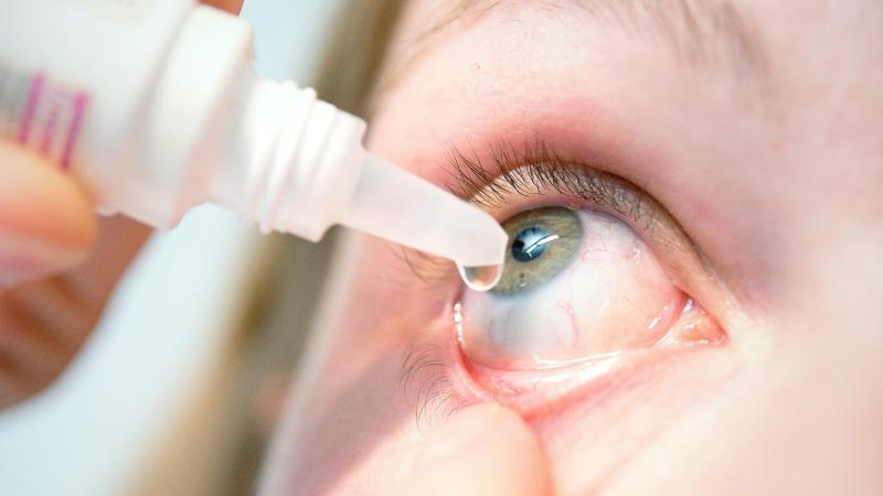 Ist das Auge trocken und gereizt, können rezeptfreie Augentropfen helfen. Foto:Karolin Krämer
