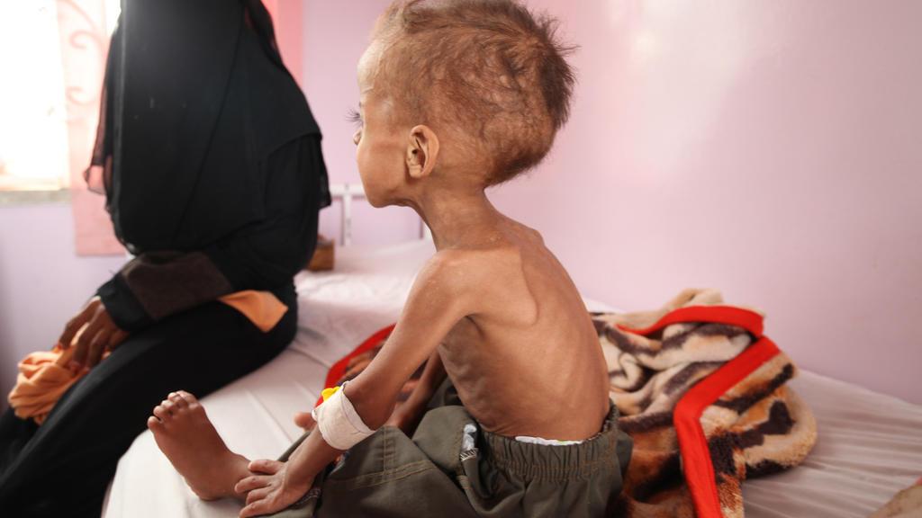 HANDOUT - ARCHIV - Ein Junge wird am 29.07.2015 in einem Krankenhaus in Sanaa (Jemen) behandelt. Wegen Mangelernährung droht knapp 1,4 Millionen Kindern in den Ländern Nigeria, Somalia, Südsudan und Jemen nach Unicef-Angaben der Hungertod. (zu dpa «U