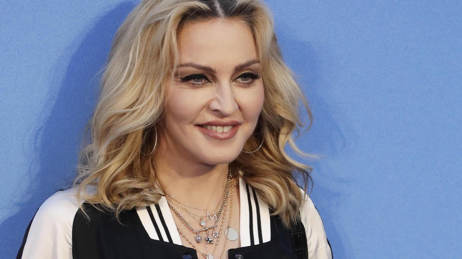 Popstar Madonna kennt man für gewöhnlich mit blondem Haar.